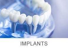 Garden Haven Dental Implants