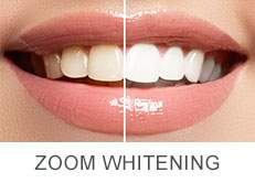 Garden Haven Dental Whitening